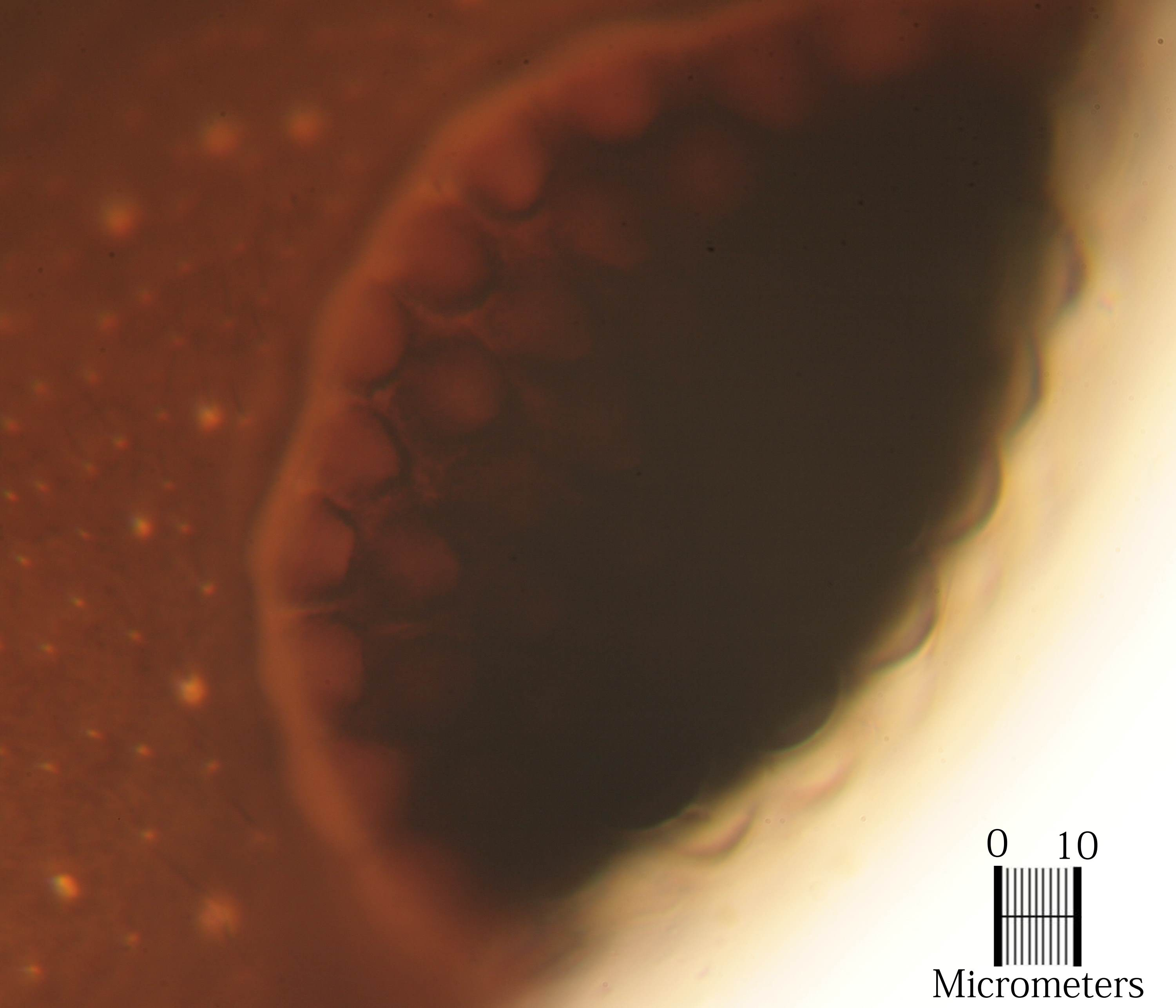 Ant Millie's eye with 100x oil immersion objective and a 10 micron scale
